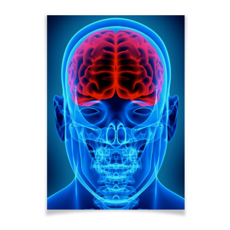 Плакат A2(42x59) Printio X-ray man цена
